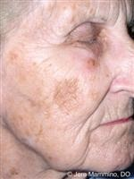 Pigmentation Disorders Diseases Of The Skin